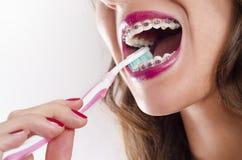 Зубы женщины крупного плана чистя щеткой с расчалками Стоковая Фотография RF