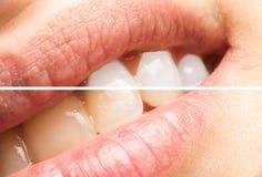 Зубы женщины перед и после забеливать процедуру Стоковое фото RF
