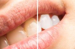 Зубы женщины перед и после забеливать процедуру Стоковые Фотографии RF