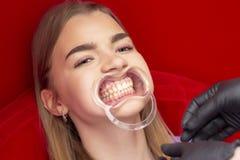 Зубы забеливая девушку процедуры сидят с ртом открытым стоковая фотография