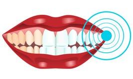 зубы забеливая Стоковые Изображения