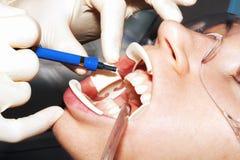 Зубы забеливая обработку Стоковые Фото