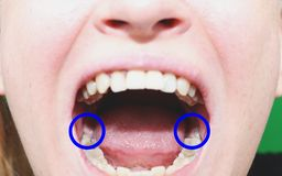 Зубы мудрости которые отрезок Зубы мудрости жаркого, eights стоковые изображения rf