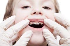зубы спада костоеды рассматривая Стоковое Изображение