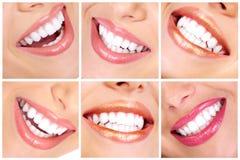 зубы Стоковое фото RF