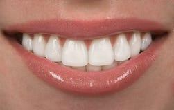 зубы Стоковое Изображение