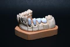 зубы gebiss Стоковые Изображения
