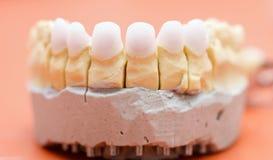 Зубы Zircon Стоковые Фото