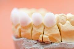 Зубы Zircon Стоковое Изображение RF