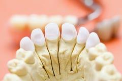 Зубы Zircon Стоковая Фотография