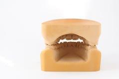 зуб гипсолита гипса модельный Стоковая Фотография