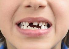 Зуб молока стоковое фото