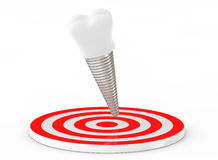 зуб стоматологии человека руки принципиальной схемы 3d Implant зуба над целью перевод 3d Стоковое Изображение RF