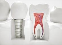 Здоровые зубы и implant - перевод 3d Стоковое Изображение