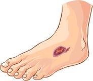 диабетическая нога иллюстрация вектора