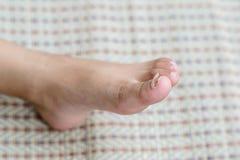 Извлечение ногтя Стоковое фото RF