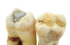 Извлеченные зубы с деталями на белой предпосылке Стоковые Фото
