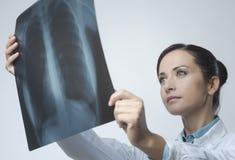 Изображение женского доктора рассматривая рентгеновского снимка стоковое фото rf