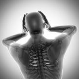 Изображение развертки рентгенографирования косточек человека Стоковые Изображения