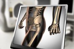 Изображение развертки рентгенографирования косточек человека стоковая фотография