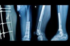 Изображение рентгеновских снимков собрания трещиноватости понижает оконечность стоковое изображение rf