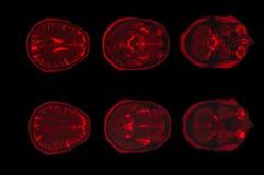 Изображение рентгеновского снимка компьютерной томографии мозга стоковые изображения rf