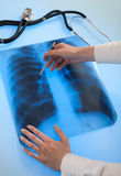 Изображение рентгеновского снимка легкй Стоковое фото RF