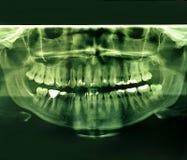 Изображение рентгеновского снимка людской челюсти Стоковые Изображения
