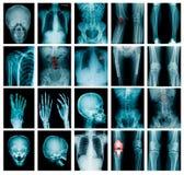 Изображение рентгеновского снимка собрания стоковые изображения rf