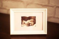 Изображение ультразвука фото в рамке на таблице стоковые изображения rf