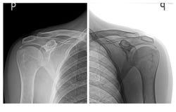 Изображения луча плеч x Стоковое Изображение RF