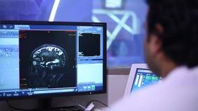 Изображения сканирования мозга на мониторе видеоматериал