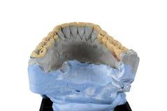 Изолированная нижняя челюсть стоковые изображения