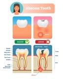 Иллюстрация вектора зуба нарыва Обозначенная медицинская диаграмма со структурой иллюстрация штока