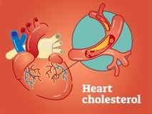 Иллюстрация вектора концепции холестерола сердца Иллюстрация штока