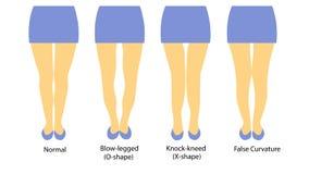 Иллюстрация вектора с различными формами ног женщин иллюстрация вектора