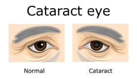 Иллюстрация глаза катаракты Стоковое Изображение RF
