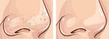 Иллюстрация закупоренных пор и очищает поры на носе Стоковое Изображение