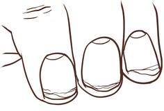 Иллюстрация здорового и сломленного ногтя Стоковые Фото