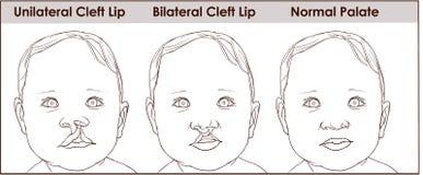 Иллюстрация нёбо расселины в ребенке созрейте над женщиной пластической хирургии белой reco Стоковая Фотография