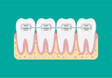 Иллюстрация расчалок зубов вектора плоская Стоковые Изображения