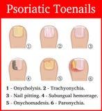 Иллюстрация Psoriatic toenails Стоковое Изображение RF