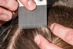 Инфекция головных вош Стоковое Изображение RF