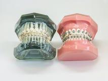Искусственная модель человеческой челюсти при прикрепленные расчалки провода красочные Стоковые Фото
