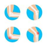 Иллюстрация вектора колена и локтя иллюстрация штока