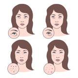 Иллюстрация вектора проблем кожи Стоковая Фотография