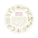 Иллюстрация различных медицинских протезов Стоковые Фотографии RF