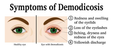 Иллюстрация Demodicosis Стоковое Изображение