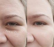 Кавказские морщинки стороны девушки после удаления стоковые фотографии rf