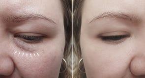Кавказские морщинки стороны девушки после удаления стоковая фотография rf